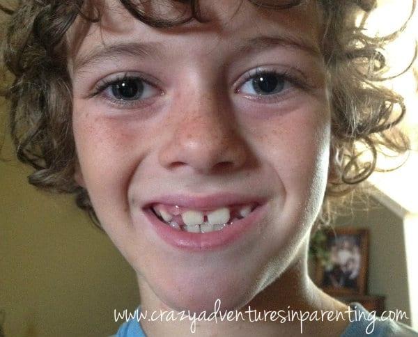 SuperM-teeth